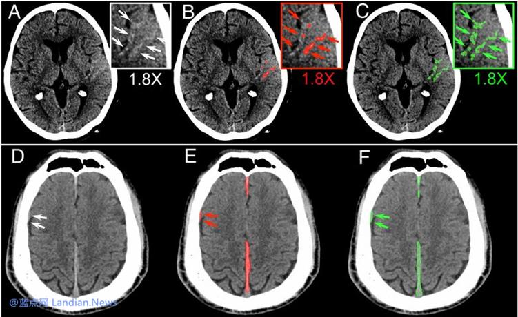研究人员利用卷积神经网络在检测脑出血方面取得非常卓越的准确率